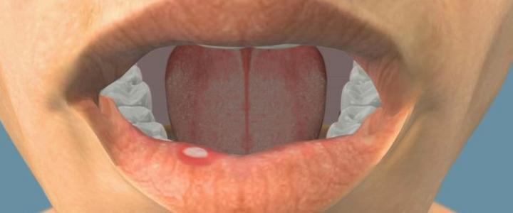 Dentista Milano le aftosi della bocca