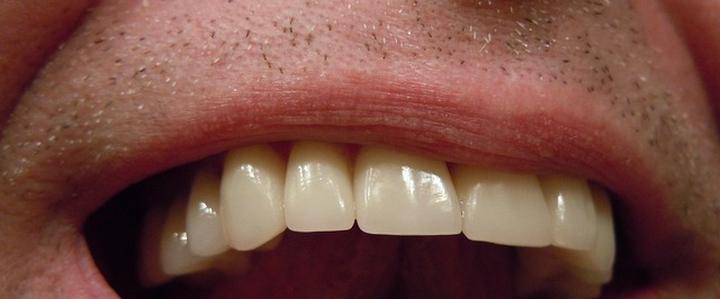 Dentista Milano Denti bianchi