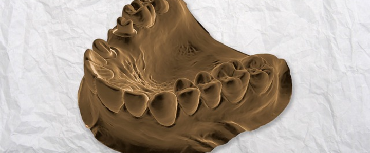 Dentista Milano denti devitalizzati