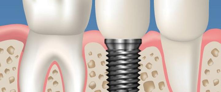 Dentista Milano Impianti dentali