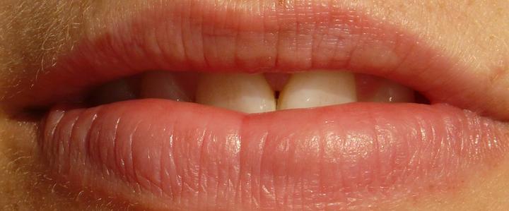 Dentista Milano Igiene orale e tartaro