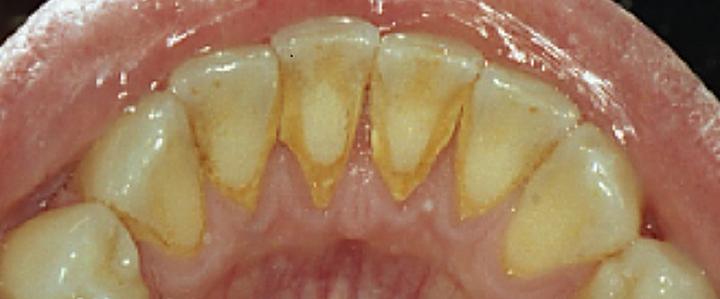 Dentista Milano La pulizia dei denti è pericolosa?
